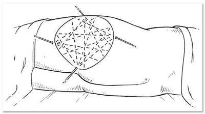 liposucción madrid